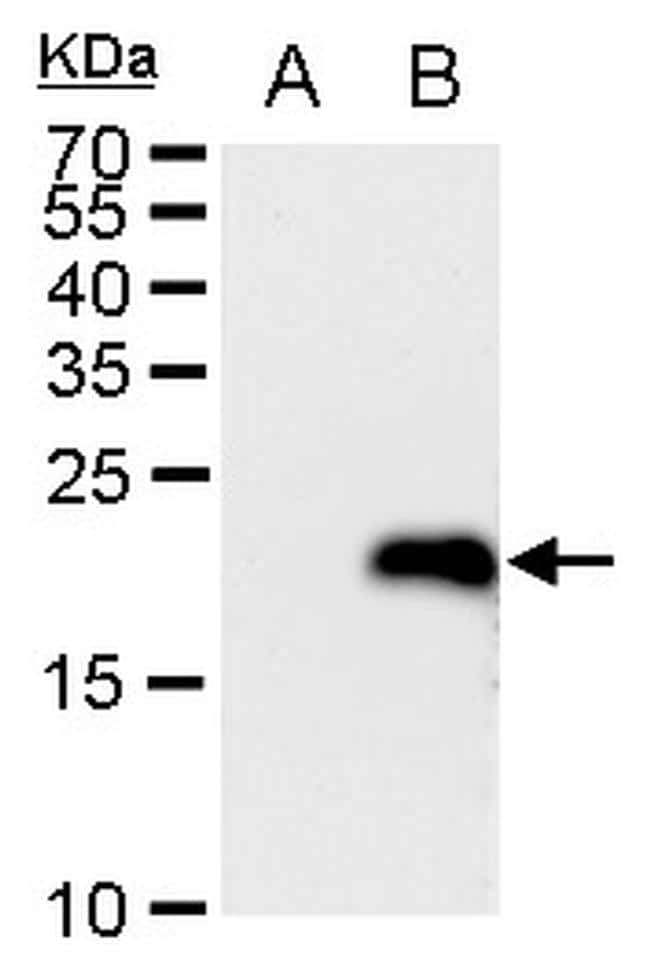 LMO4 Antibody in Western Blot (WB)