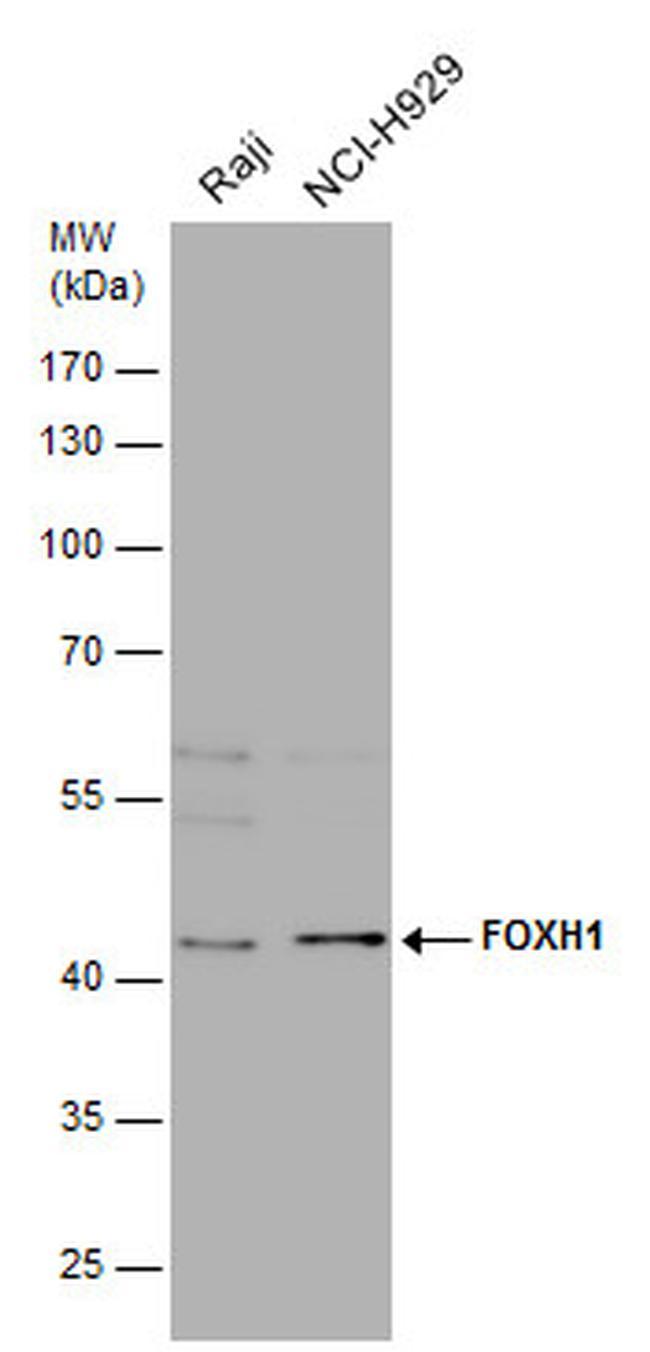 FOXH1 Antibody in Western Blot (WB)