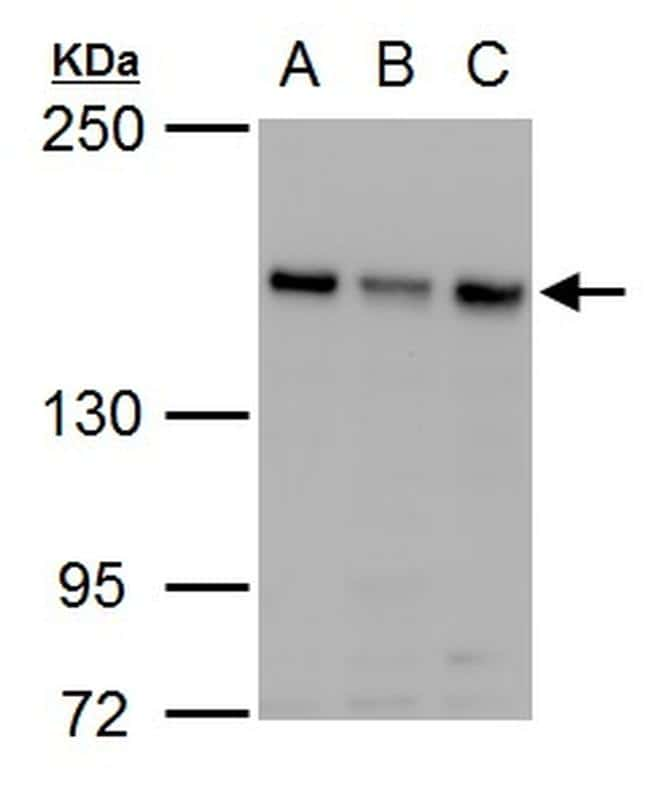 ROCK2 Antibody in Western Blot (WB)