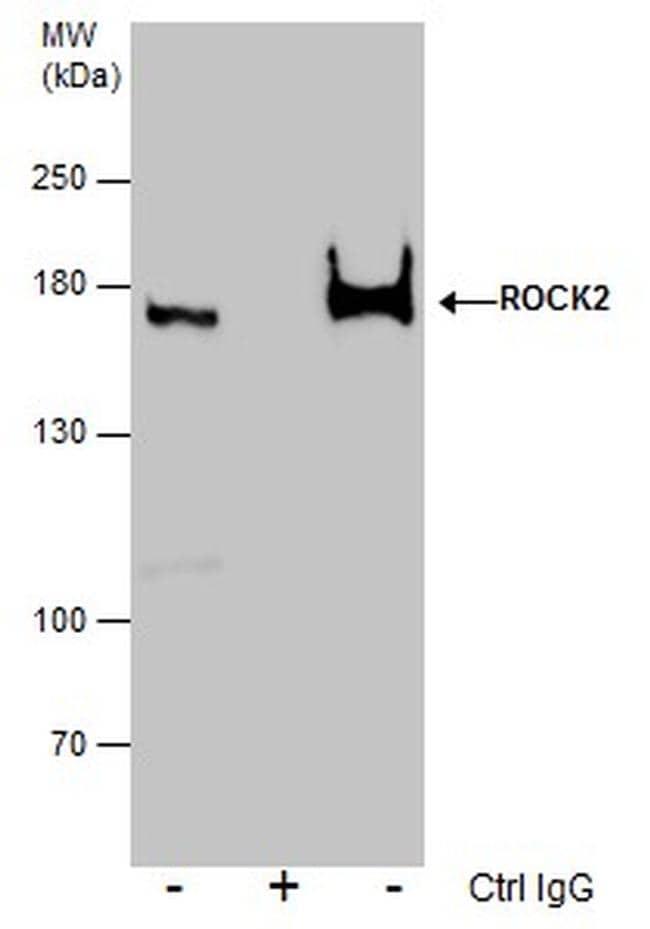 ROCK2 Antibody in Immunoprecipitation (IP)
