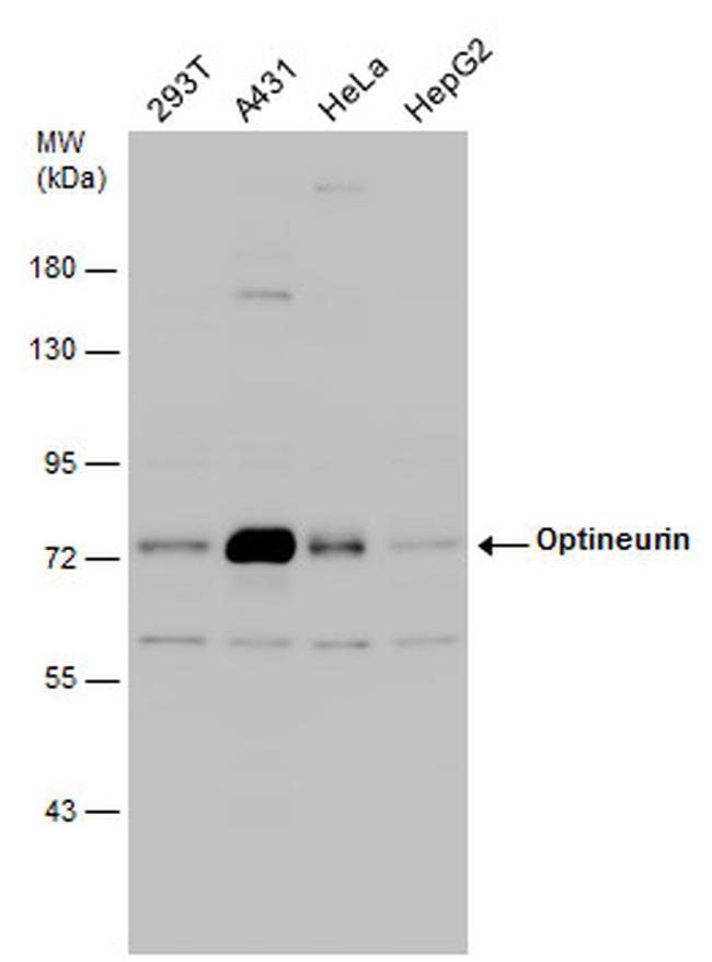 Optineurin Antibody in Western Blot (WB)