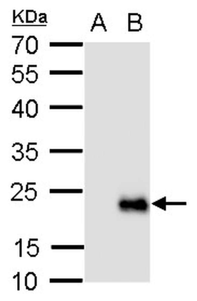 RGS19 Antibody in Western Blot (WB)