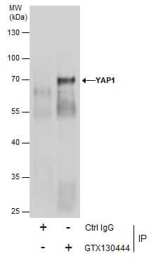 YAP1 Antibody in Immunoprecipitation (IP)