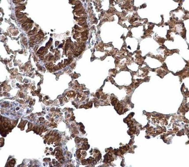 LARGE Antibody in Immunohistochemistry (Paraffin) (IHC (P))