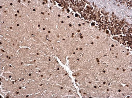 LIM1 Antibody in Immunohistochemistry (Paraffin) (IHC (P))