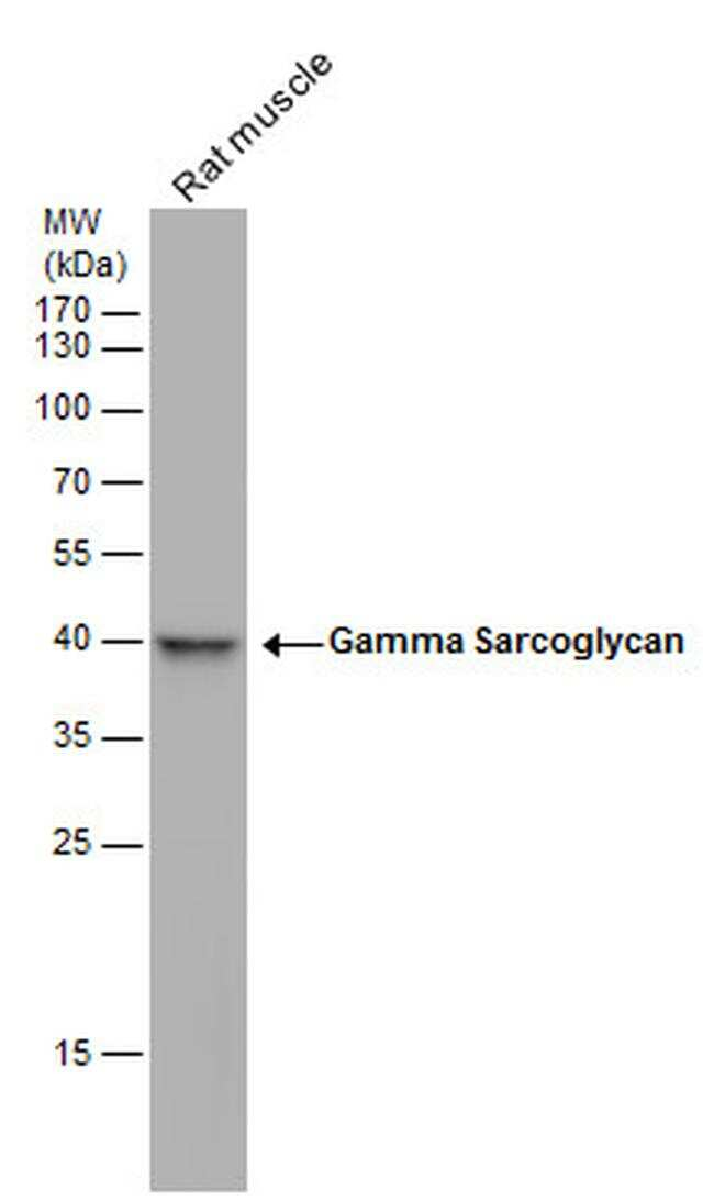 SGCG Antibody in Western Blot (WB)