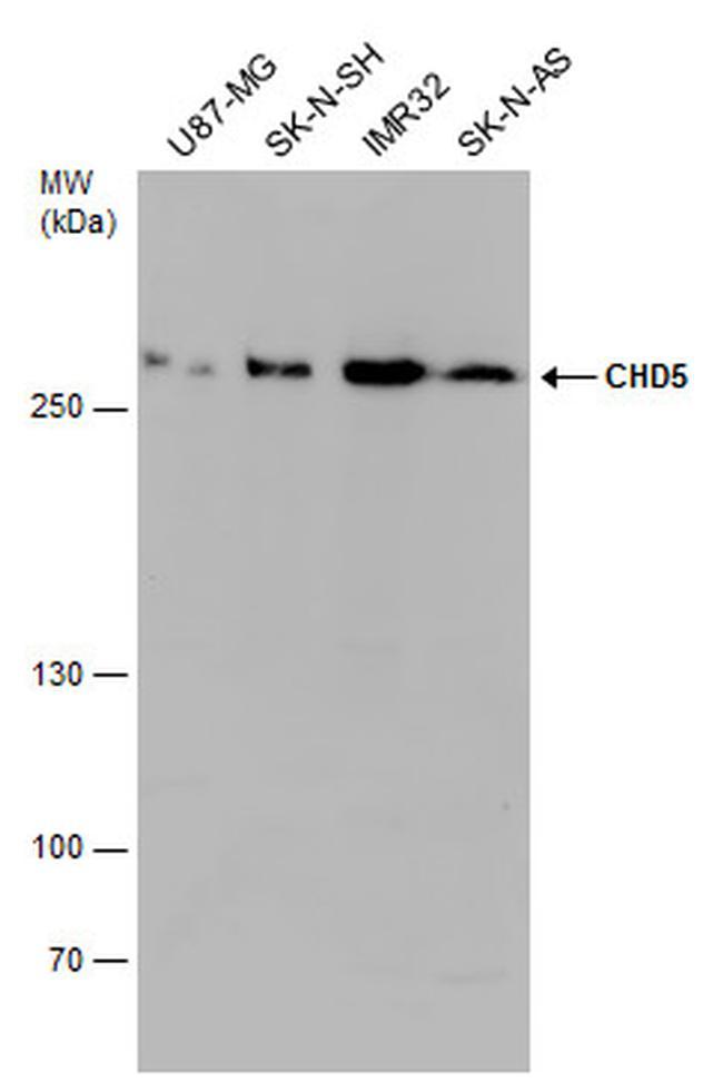 CHD5 Antibody in Western Blot (WB)