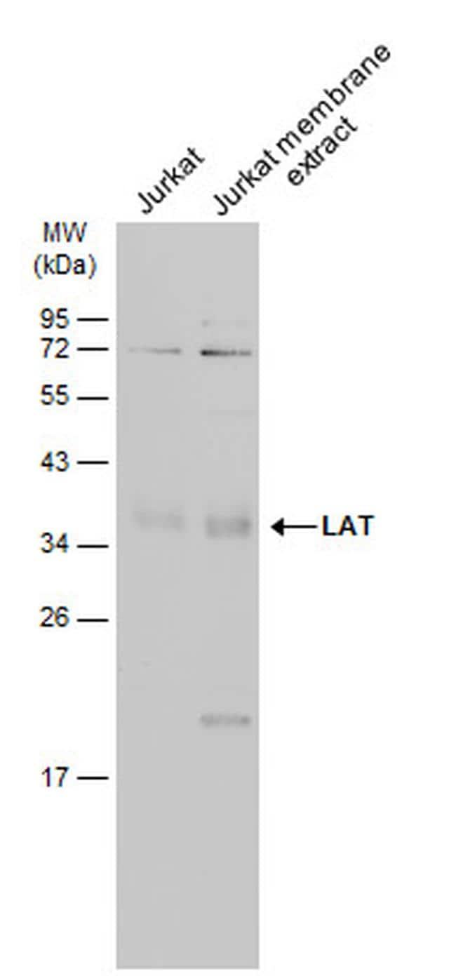 LAT Antibody in Western Blot (WB)
