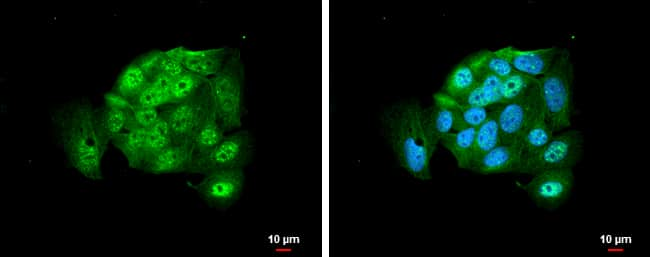 AGO2 Antibody in Immunofluorescence (IF)