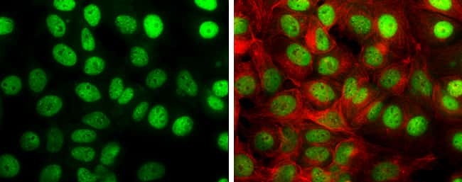 TIF1 gamma Antibody in Immunocytochemistry (ICC/IF)