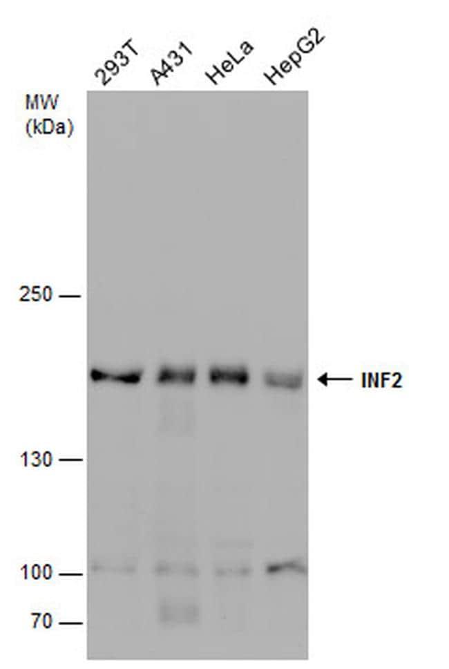 INF2 Antibody in Western Blot (WB)
