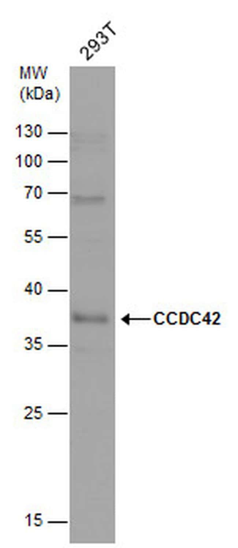 CCDC42 Antibody in Western Blot (WB)