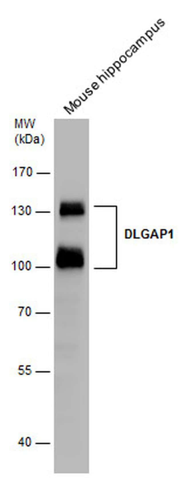 SAPAP1 Antibody in Western Blot (WB)