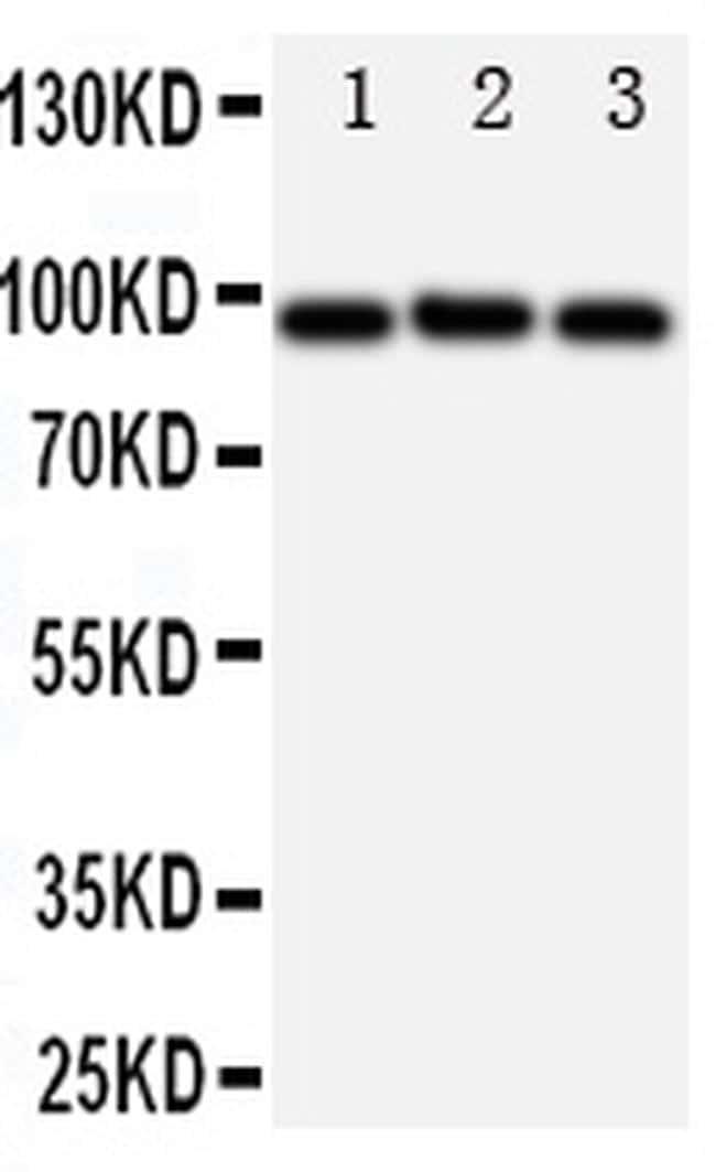 ABCB6 Antibody in Western Blot (WB)