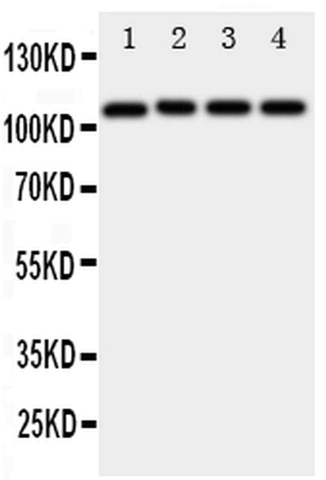 ADAM19 Antibody in Western Blot (WB)