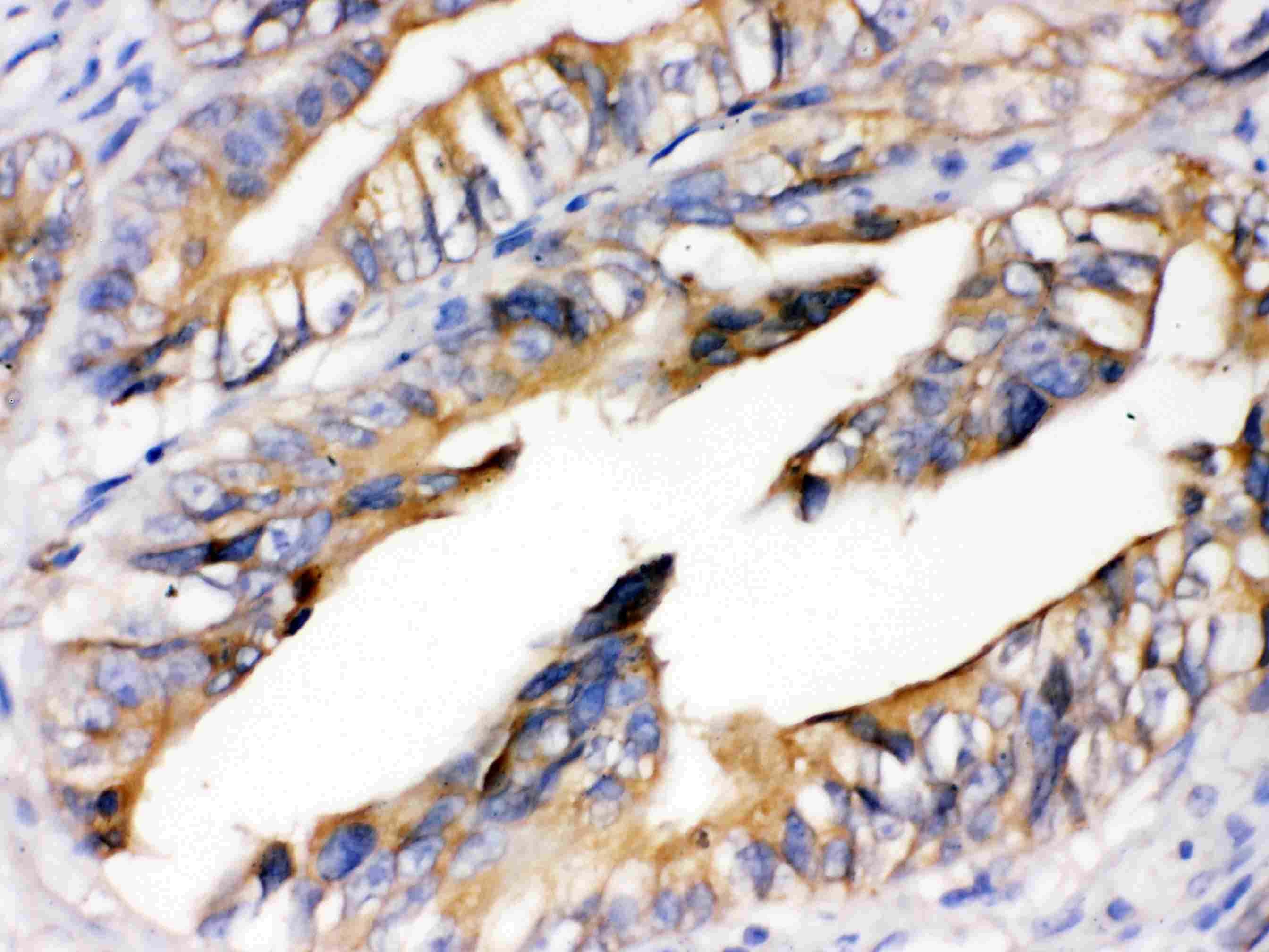 RAGE Antibody in Immunohistochemistry (Paraffin) (IHC (P))