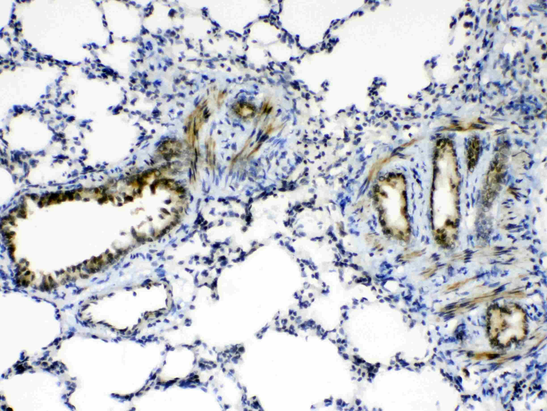 AGO1 Antibody in Immunohistochemistry (Paraffin) (IHC (P))