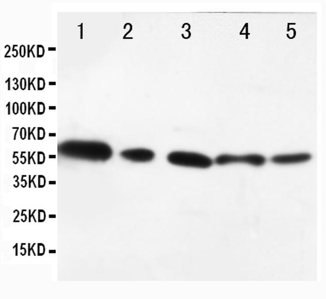 AKT1/AKT2 Antibody in Western Blot (WB)