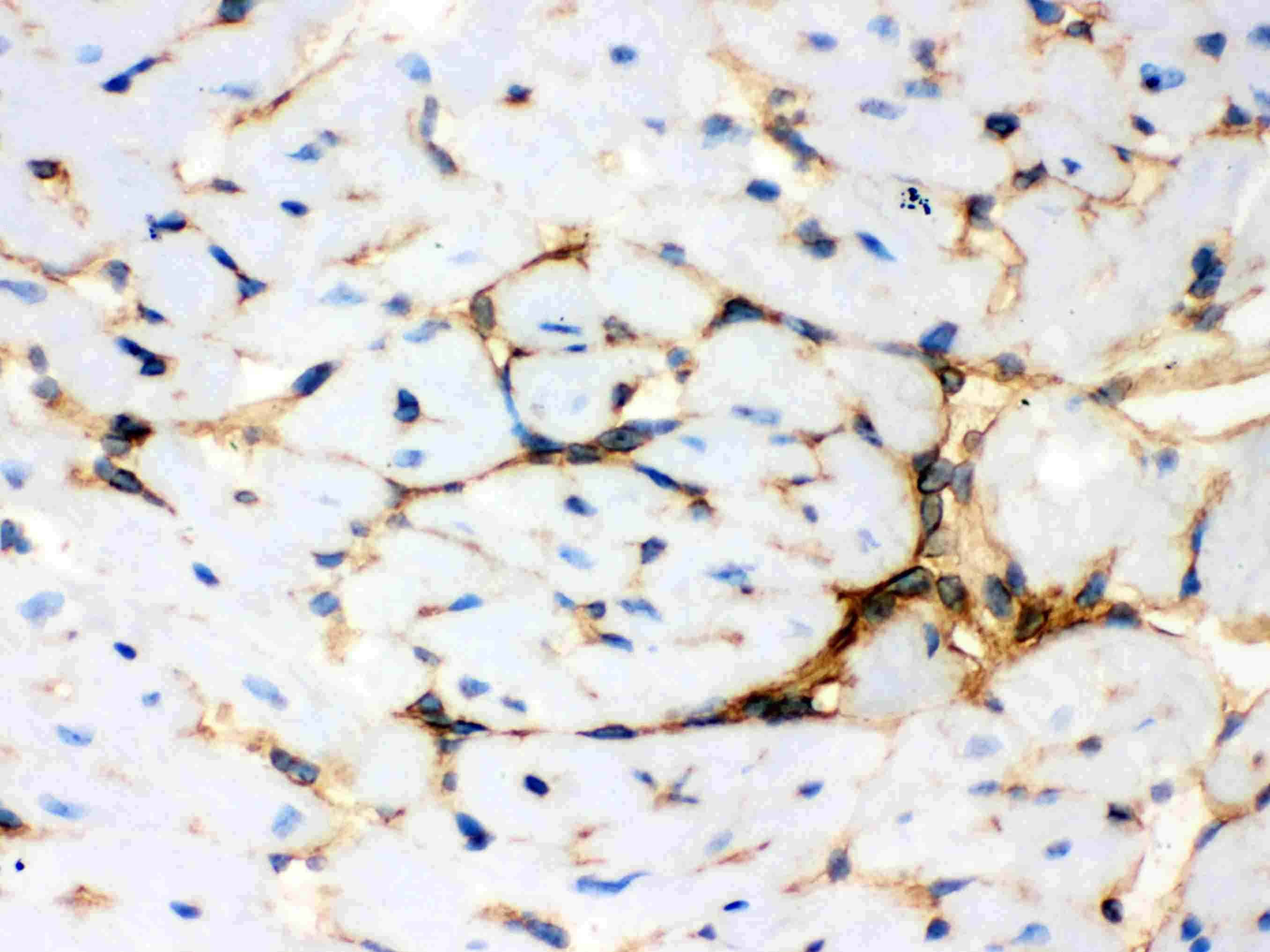 Annexin A3 Antibody in Immunohistochemistry (IHC)