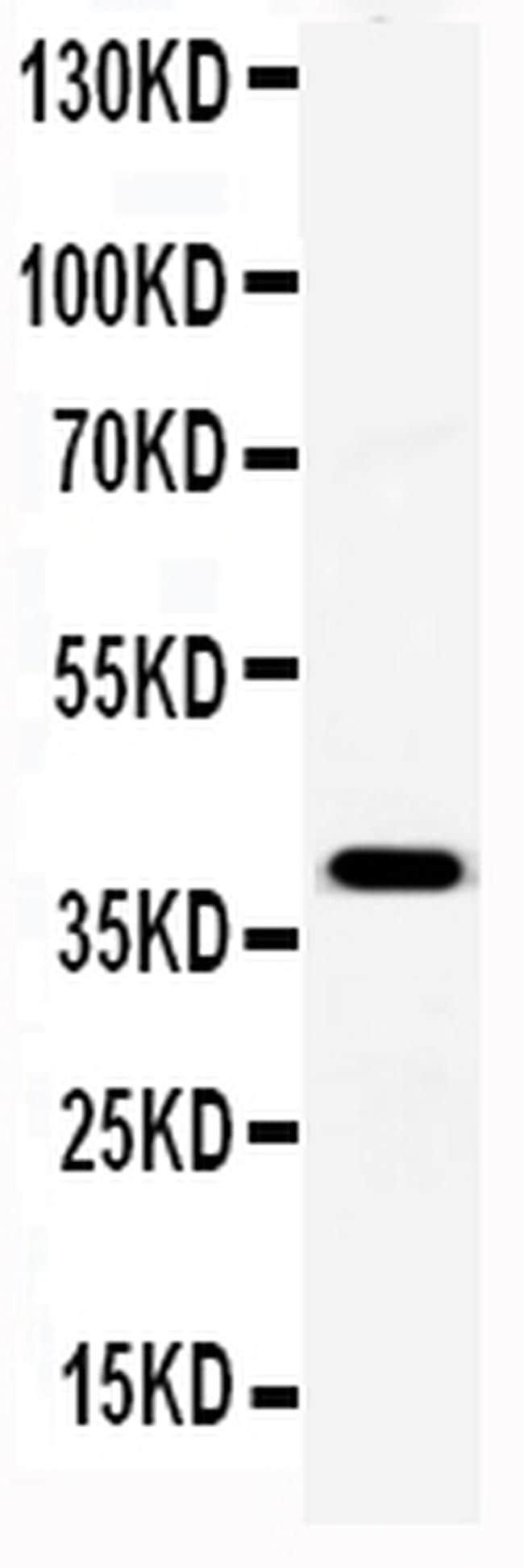 Serum Amyloid P Antibody in Western Blot (WB)