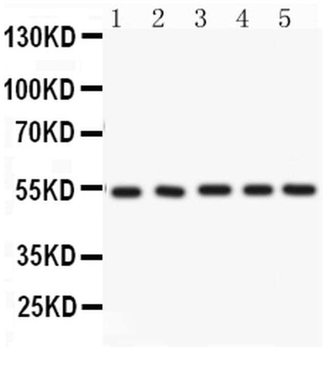 ARSA Antibody in Western Blot (WB)
