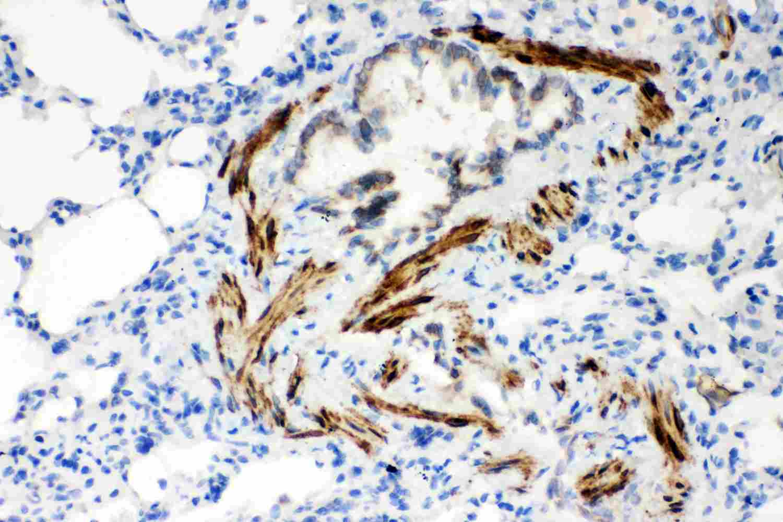 SERCA2 ATPase Antibody in Immunohistochemistry (Paraffin) (IHC (P))