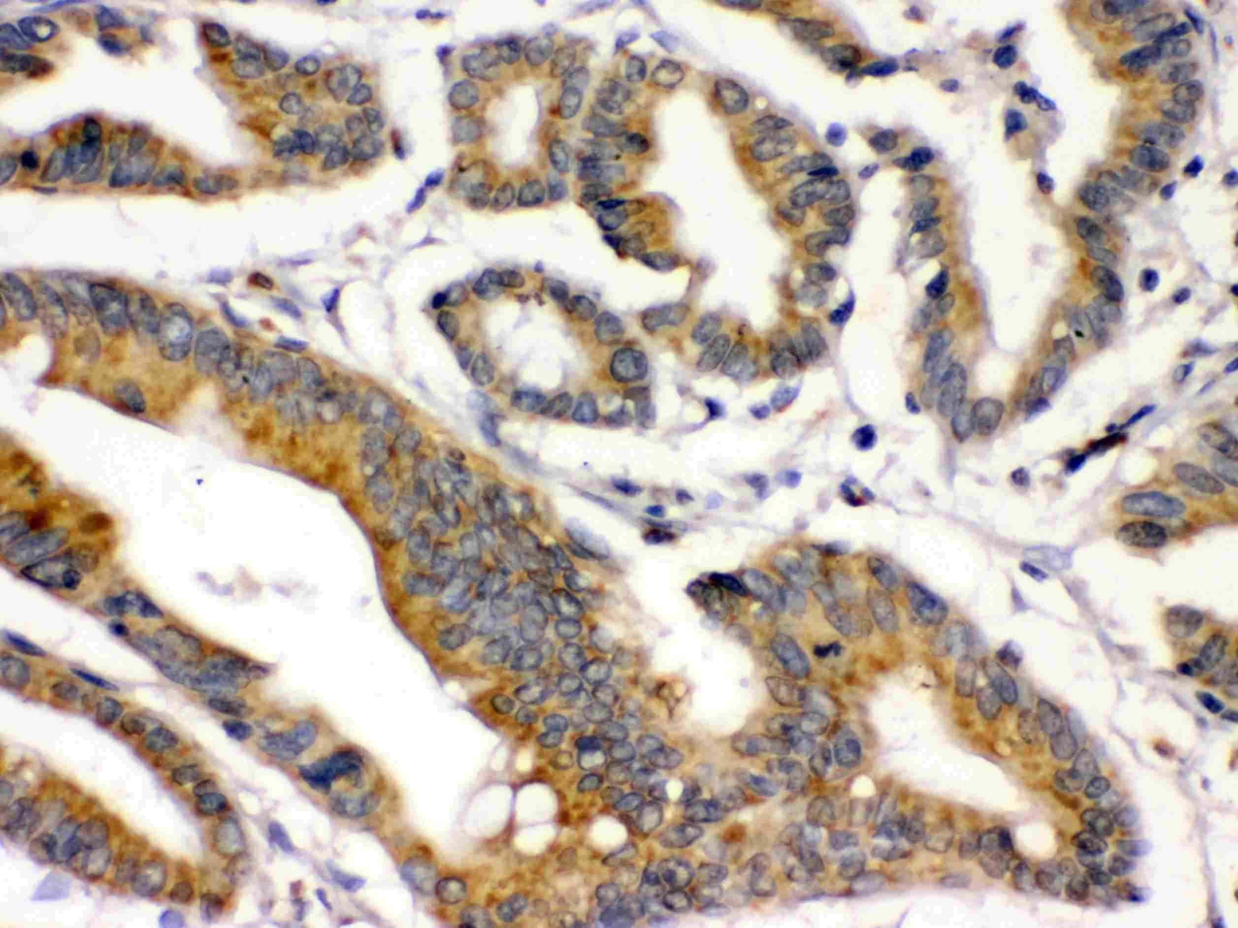 BMP-2 Antibody in Immunohistochemistry (Paraffin) (IHC (P))