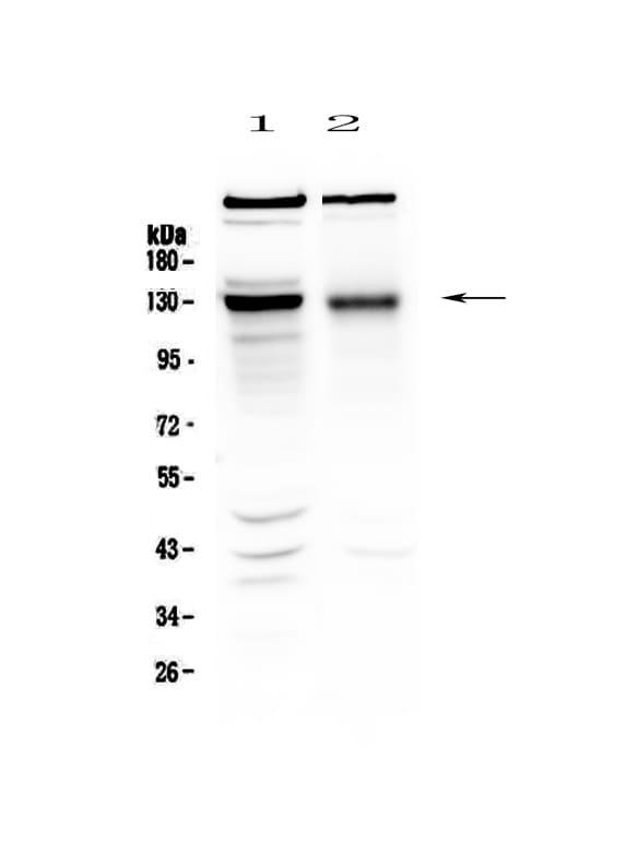 BMPR2 Antibody in Western Blot (WB)