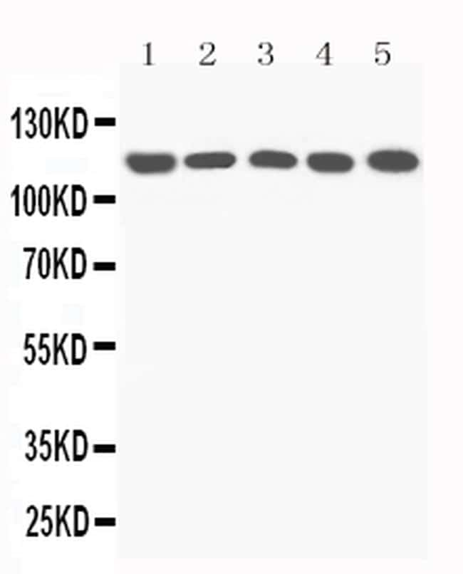 Complement C5a Antibody in Western Blot (WB)