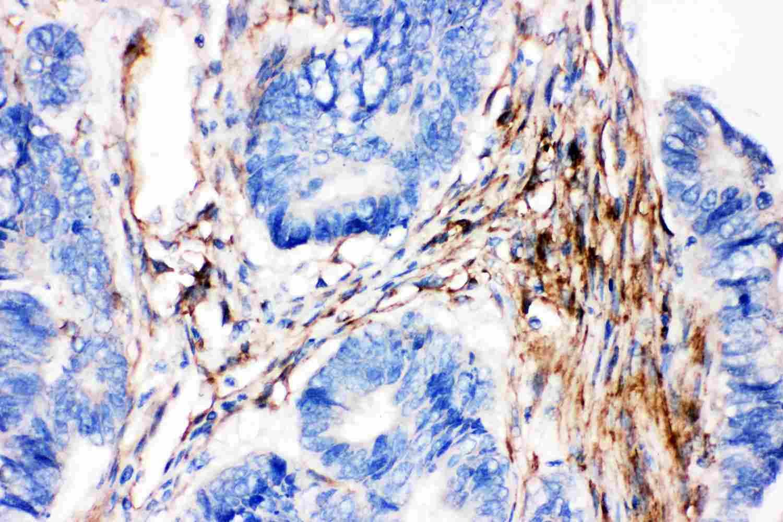 Caveolin 2 Antibody in Immunohistochemistry (Paraffin) (IHC (P))