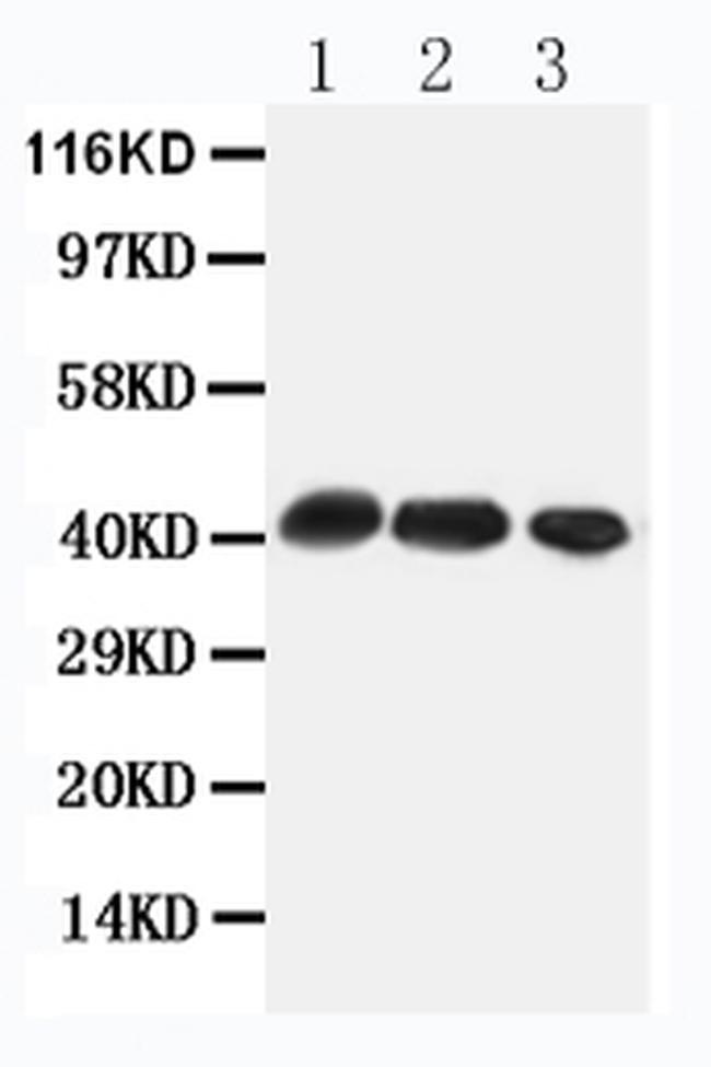CCR4 Antibody in Western Blot (WB)
