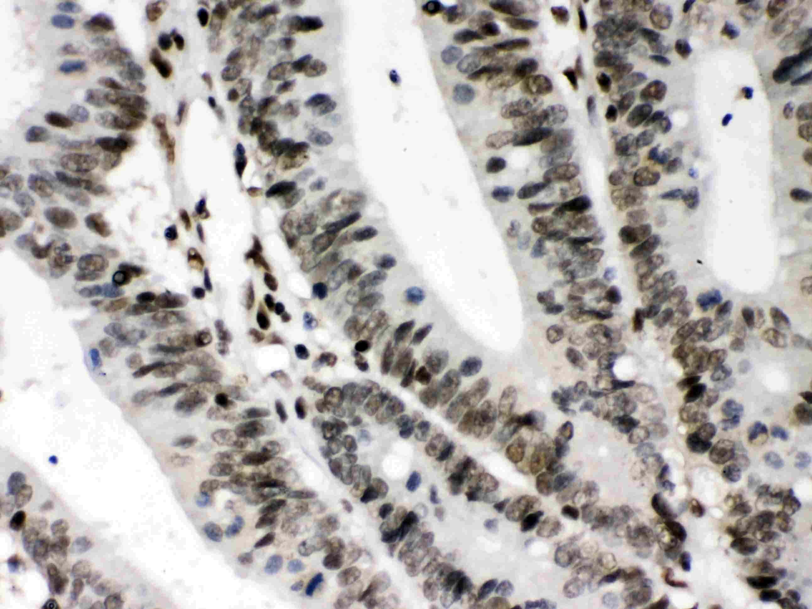 CIITA Antibody in Immunohistochemistry (Paraffin) (IHC (P))