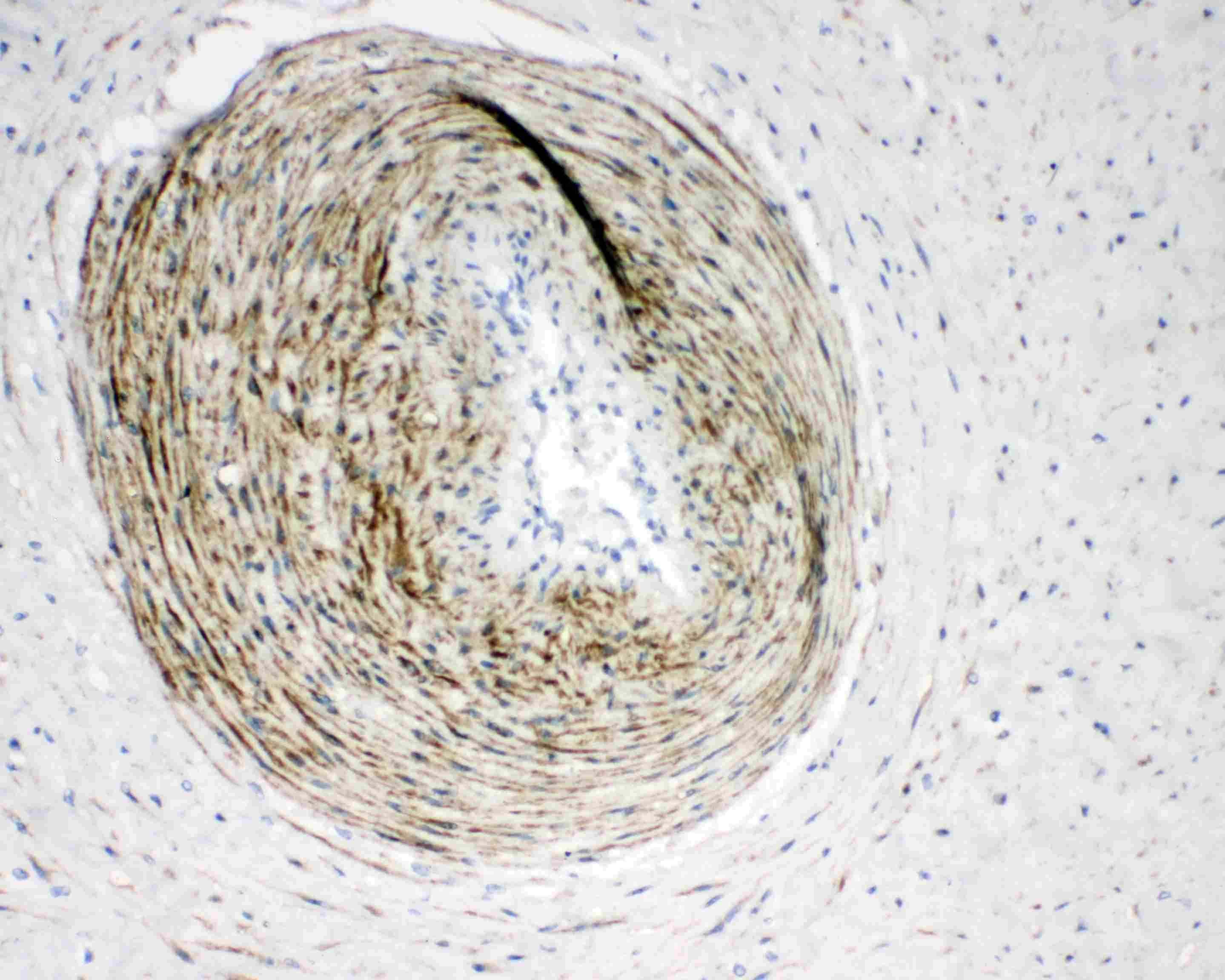 Calponin 1 Antibody in Immunohistochemistry (Paraffin) (IHC (P))