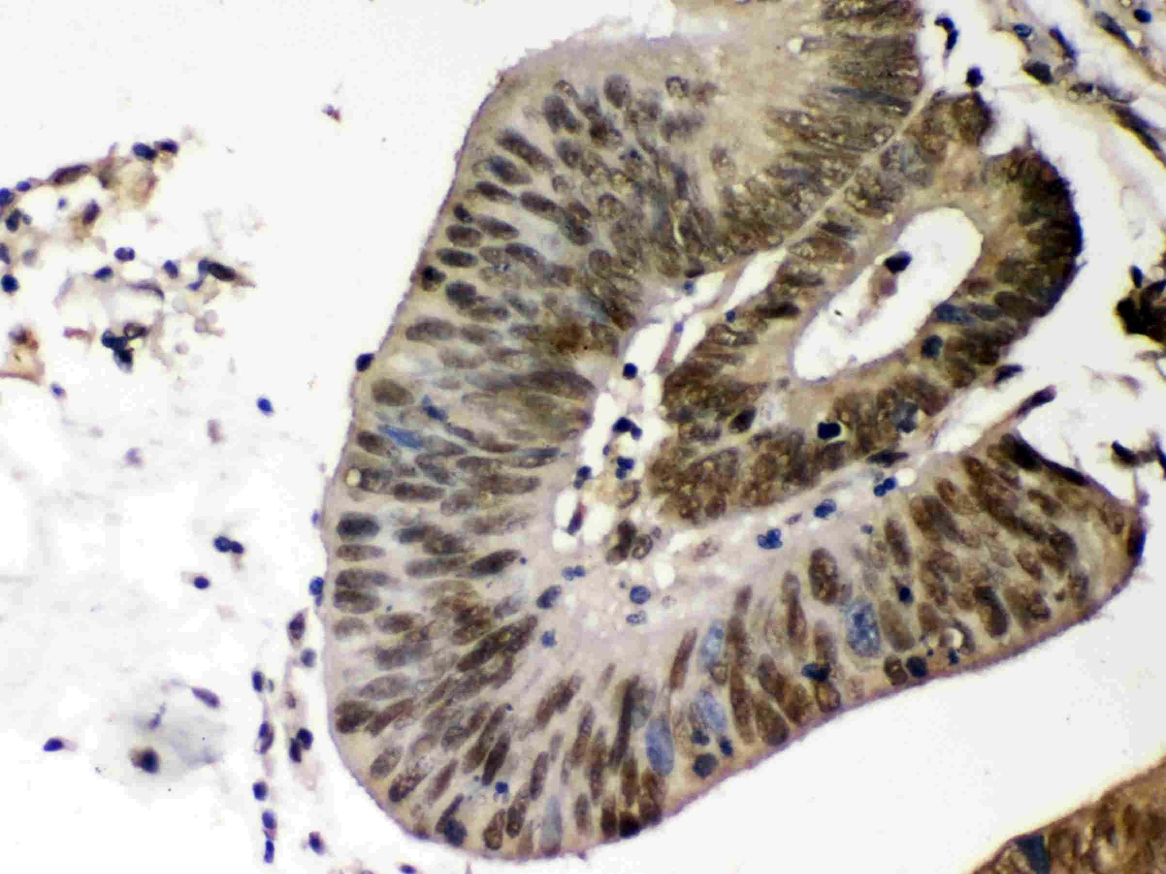 CK1 alpha Antibody in Immunohistochemistry (Paraffin) (IHC (P))