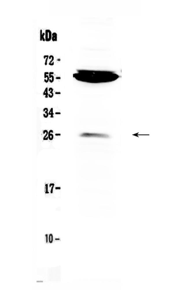 CTLA-4 (CD152) Antibody in Western Blot (WB)