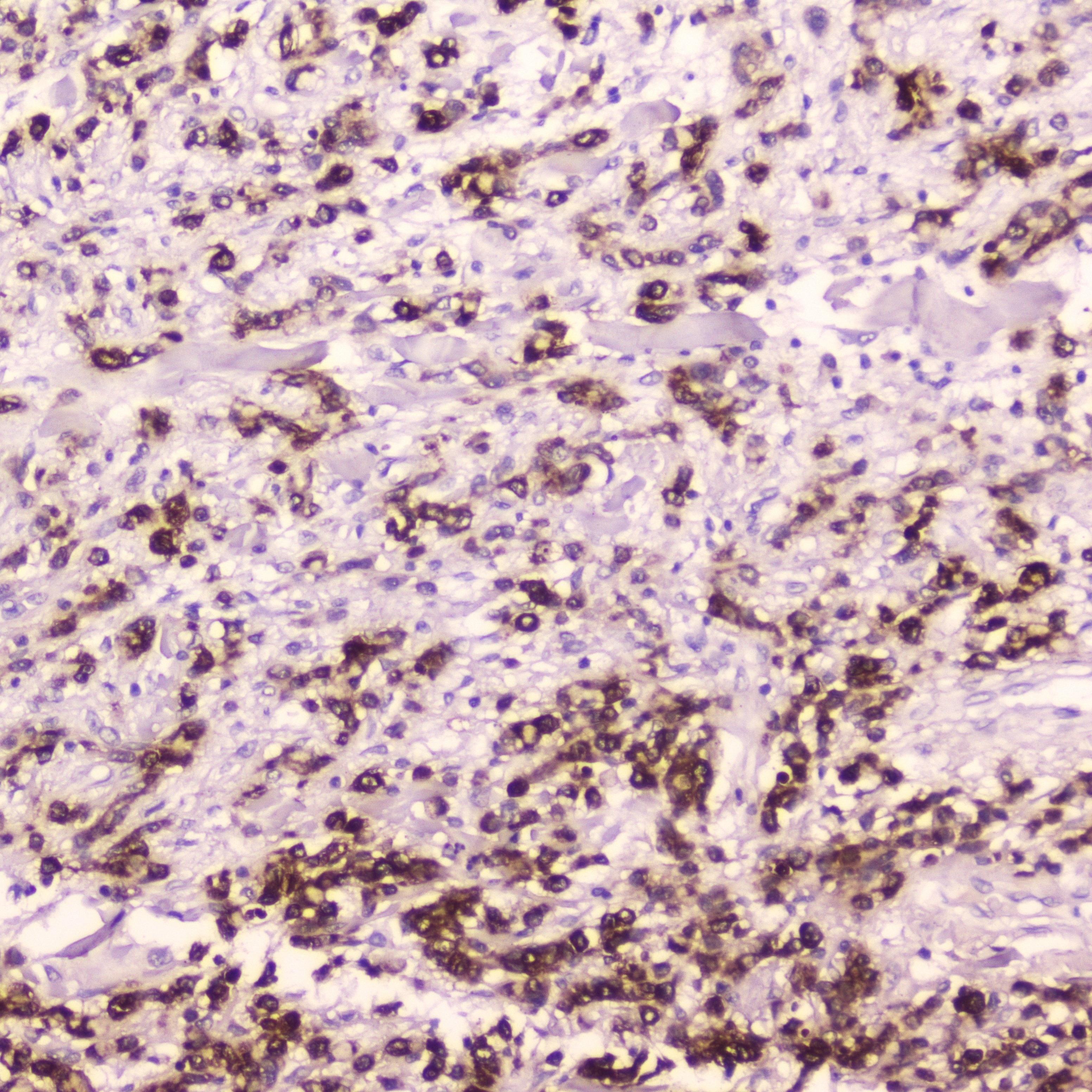 Cathepsin E Antibody in Immunohistochemistry (Paraffin) (IHC (P))