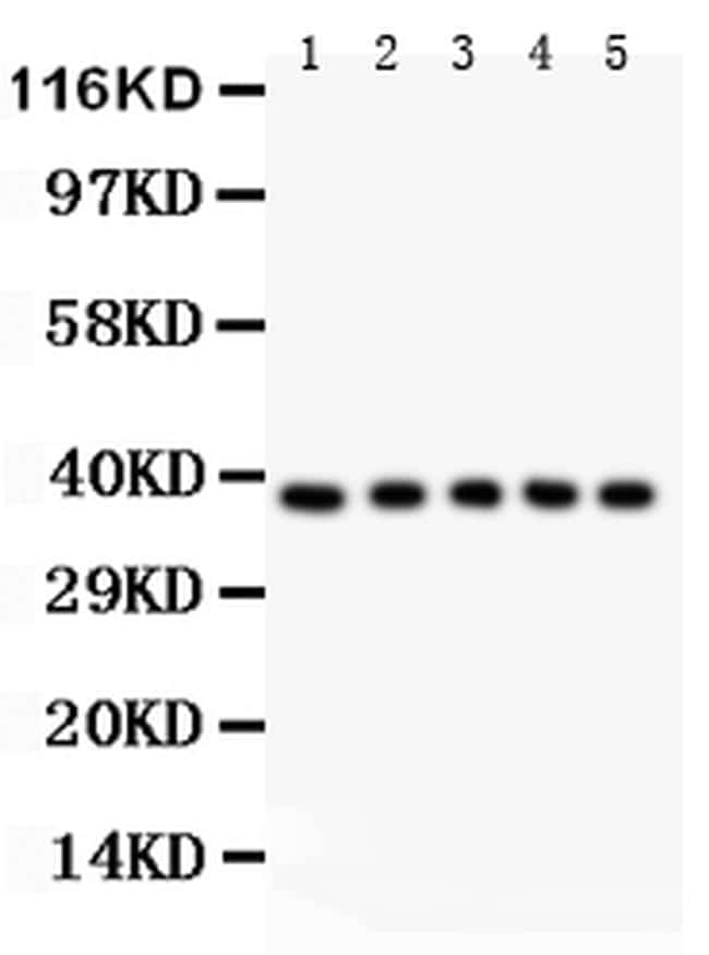 FAS (CD95) Antibody in Western Blot (WB)