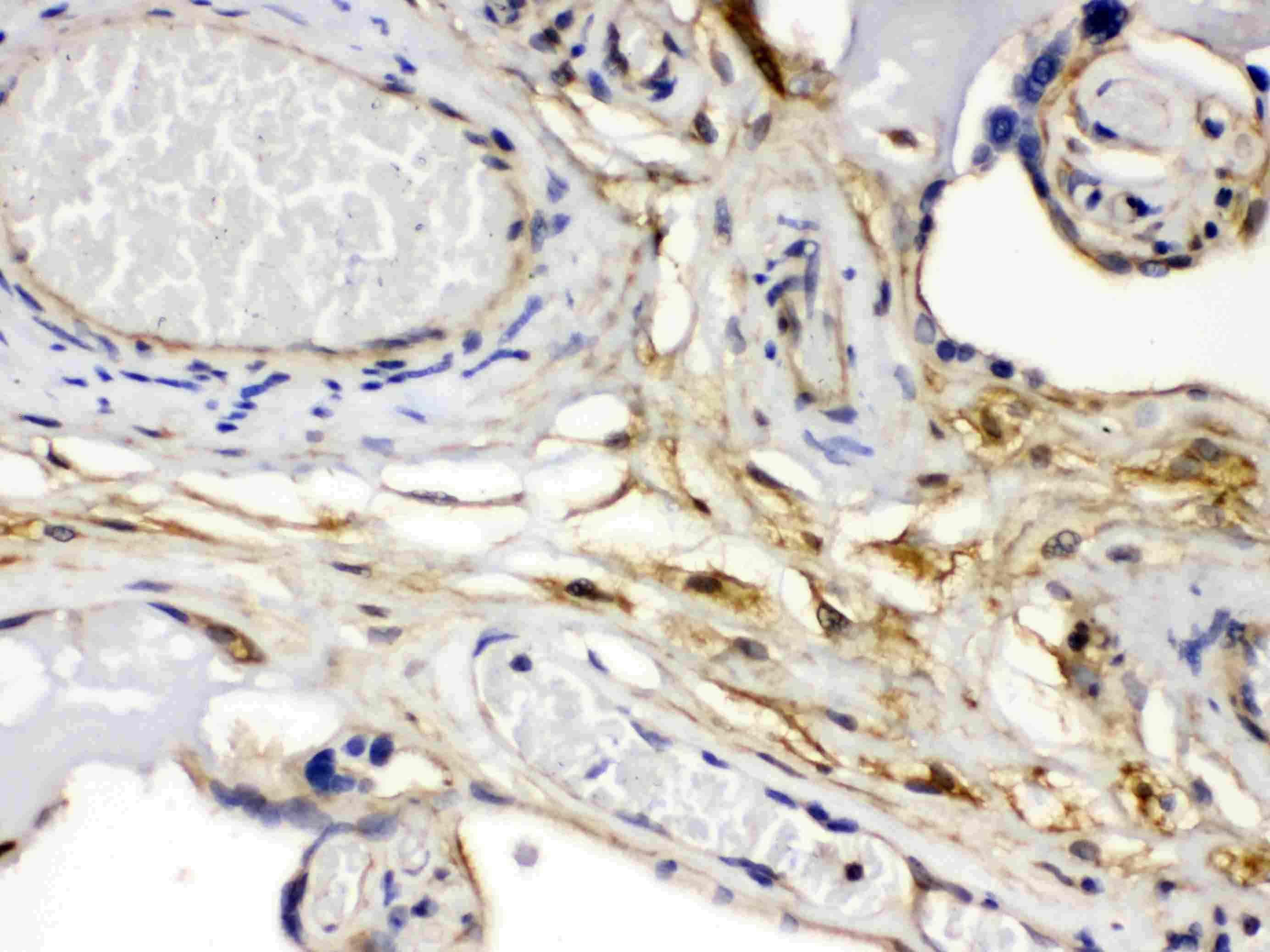 FGF1 Antibody in Immunohistochemistry (Paraffin) (IHC (P))