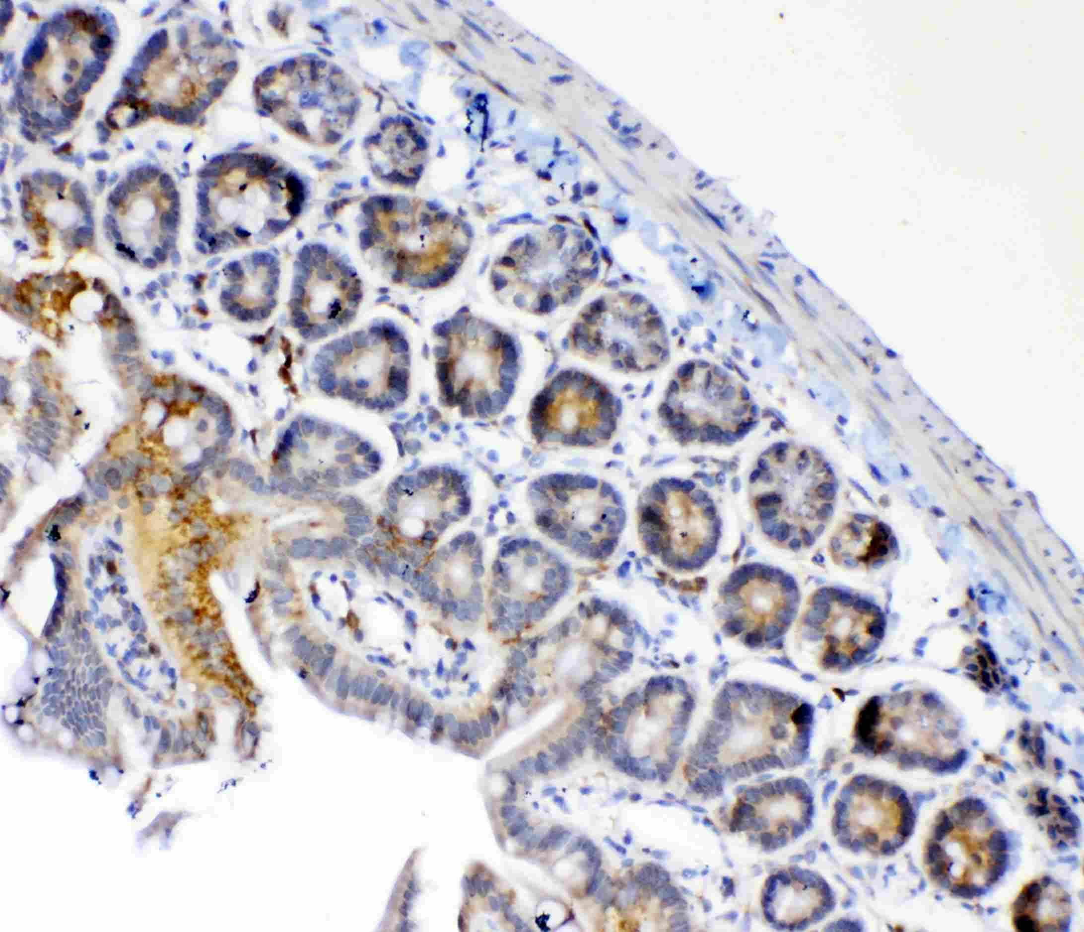 Fumarase Antibody in Immunohistochemistry (Paraffin) (IHC (P))