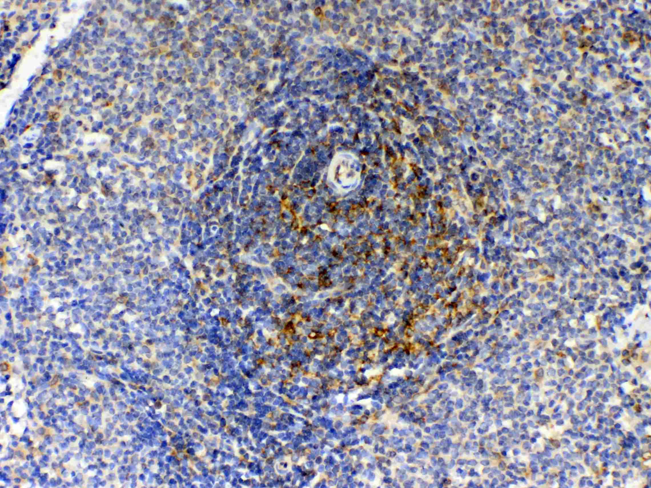GAS6 Antibody in Immunohistochemistry (Paraffin) (IHC (P))