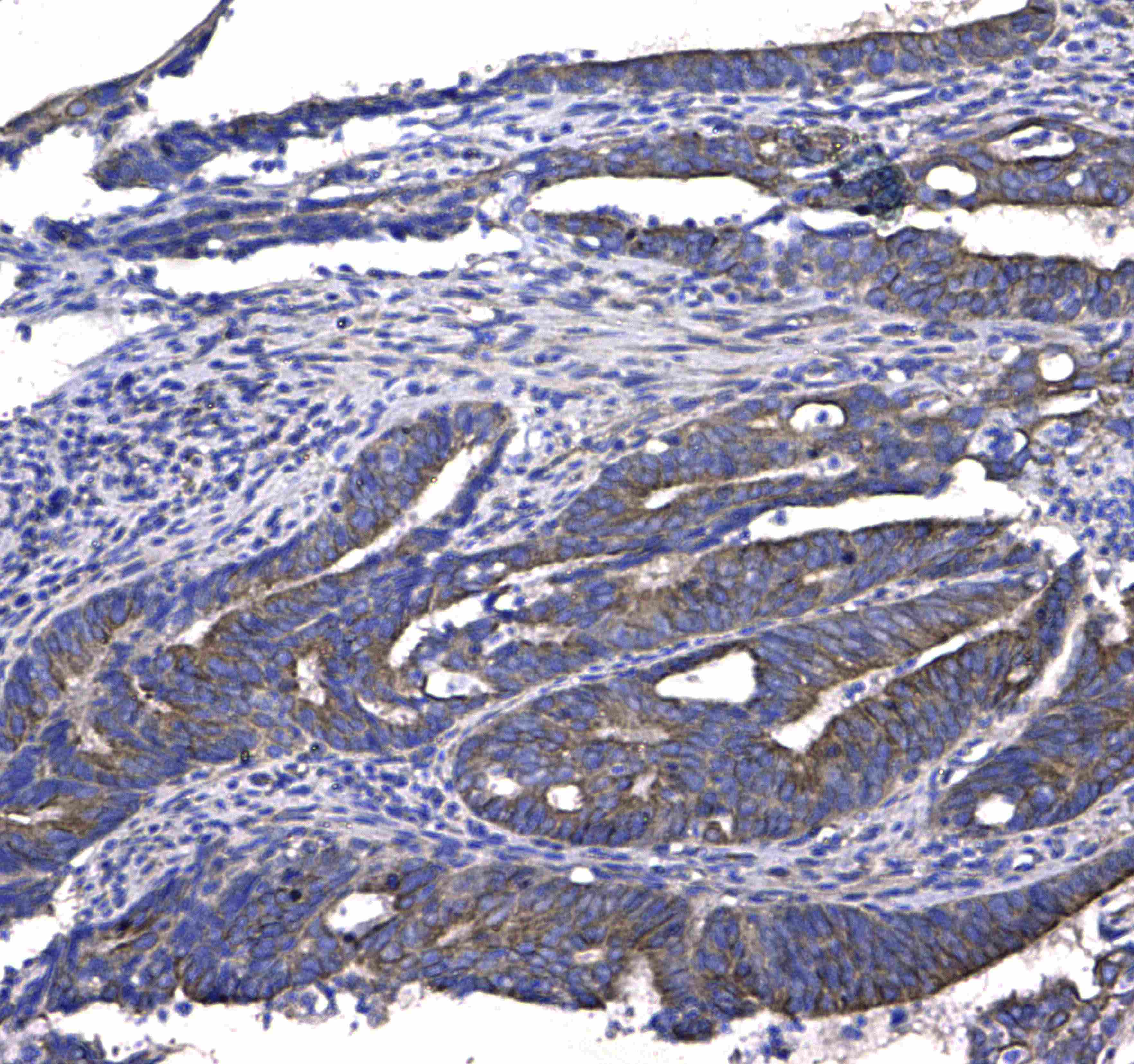 GSTM3 Antibody in Immunohistochemistry (Paraffin) (IHC (P))