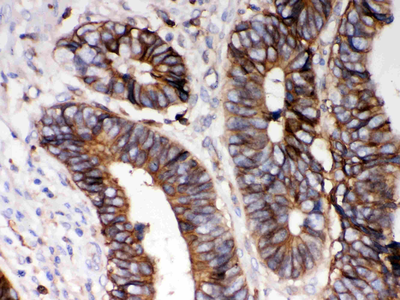 HLA-A Antibody in Immunohistochemistry (Paraffin) (IHC (P))