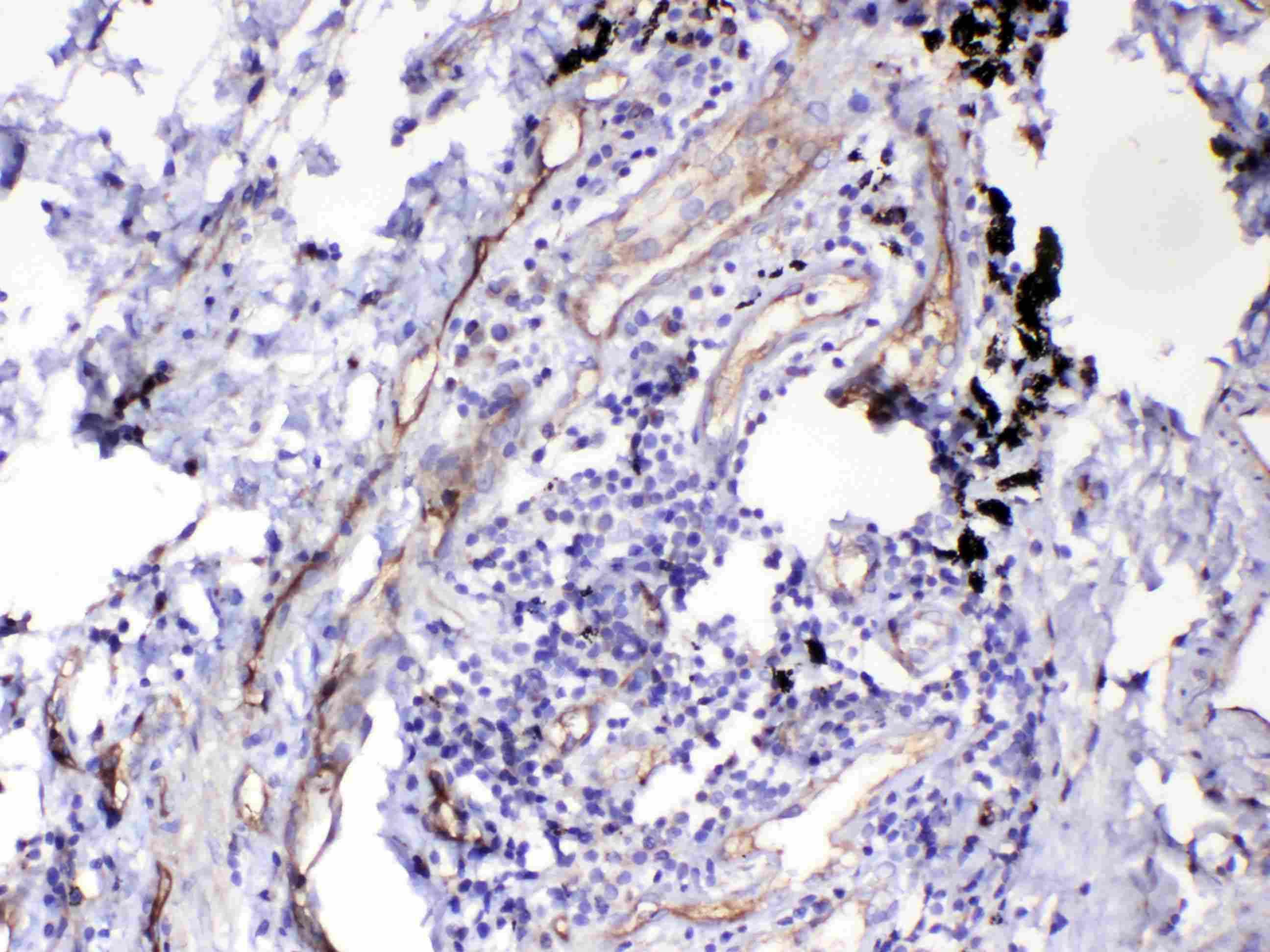 HOMER3 Antibody in Immunohistochemistry (Paraffin) (IHC (P))