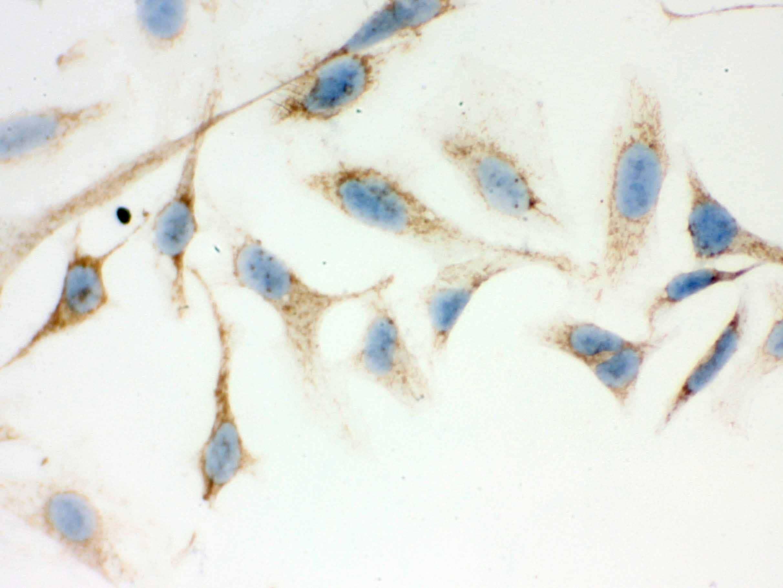 ERAB Antibody in Immunohistochemistry (IHC)