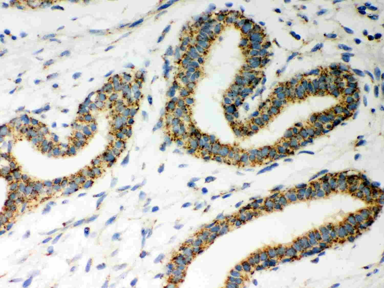 ERAB Antibody in Immunohistochemistry (Paraffin) (IHC (P))