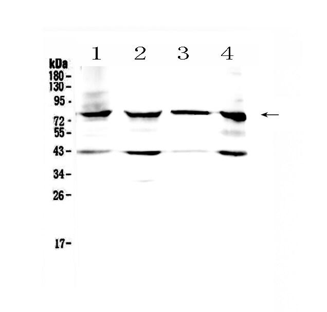 HSD17B4 Antibody in Western Blot (WB)