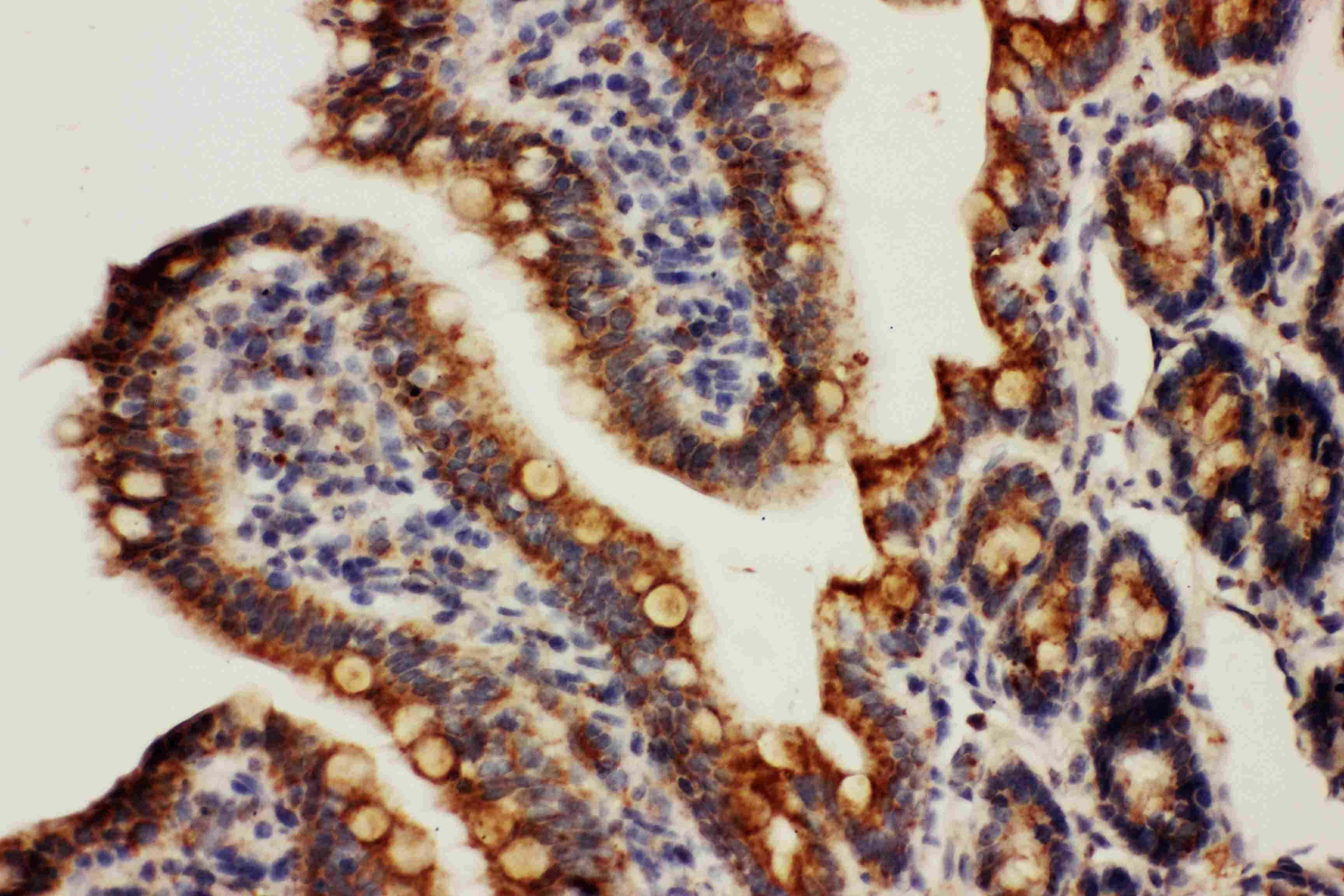 HSPE1 Antibody in Immunohistochemistry (Paraffin) (IHC (P))
