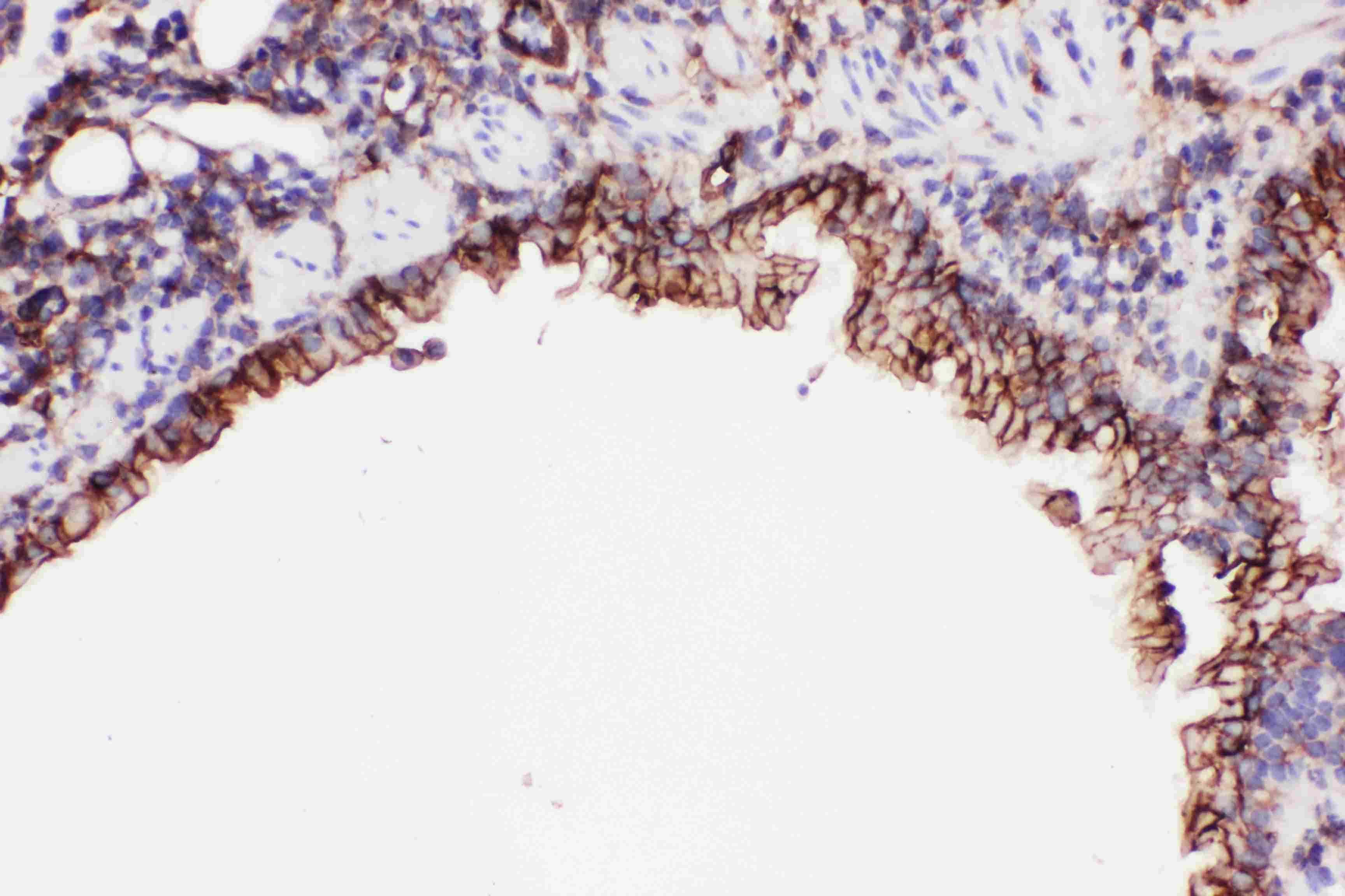 ICAM-1 (CD54) Antibody in Immunohistochemistry (Paraffin) (IHC (P))