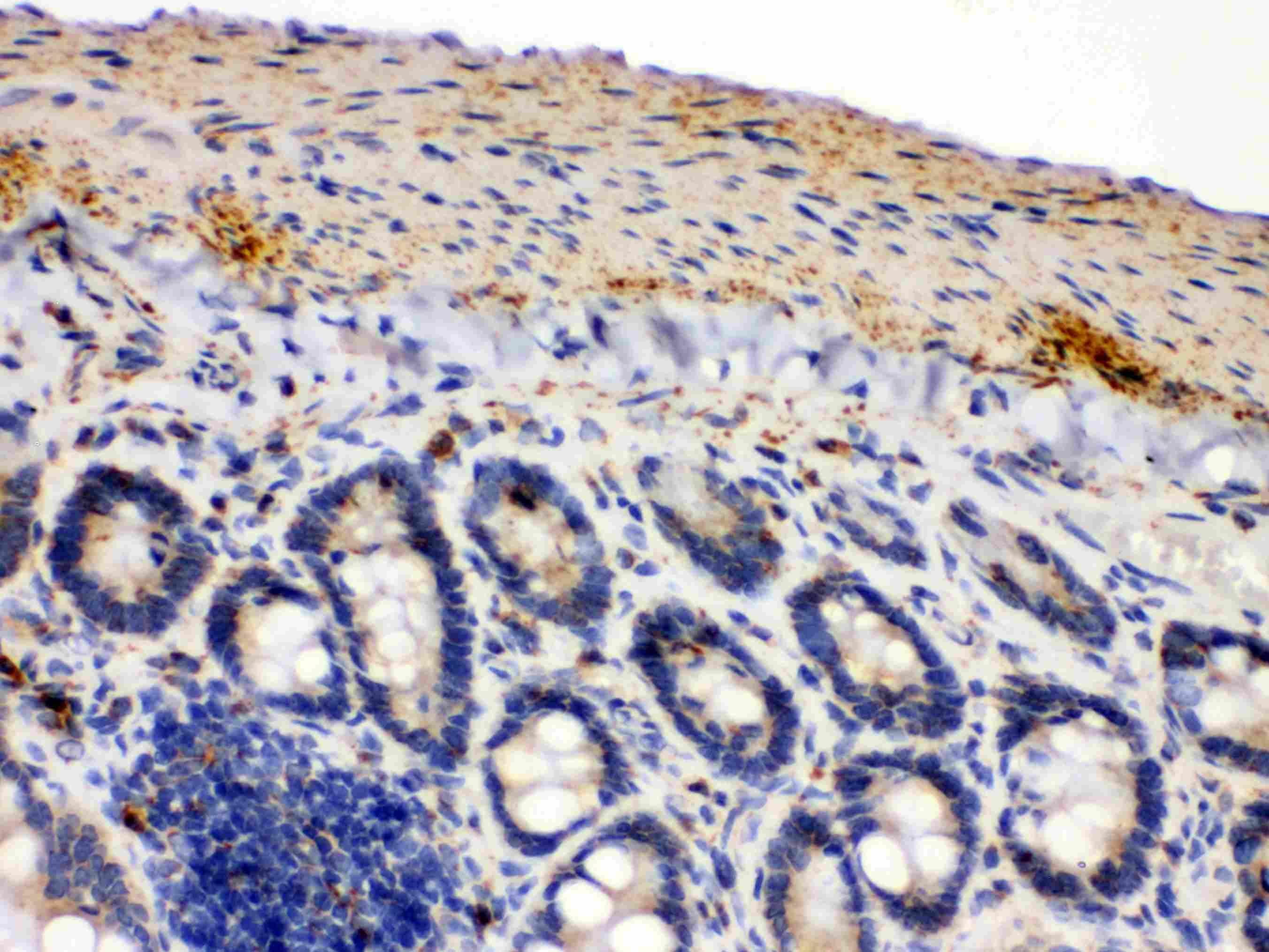 IDH2 Antibody in Immunohistochemistry (Paraffin) (IHC (P))