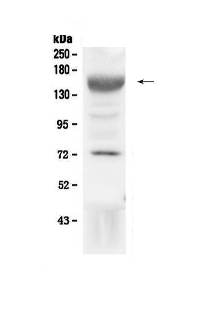 IGF1R (CD221) Antibody in Western Blot (WB)